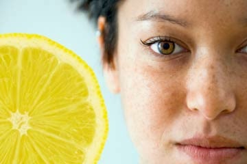 lemon for freckles