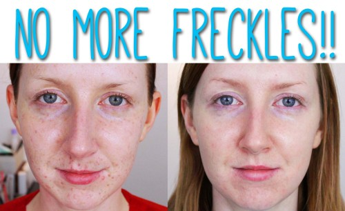 get rid of freckles on the face