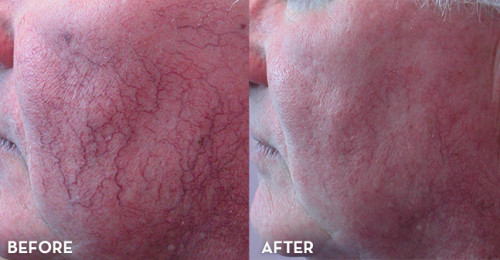 get rid of stubborn spider-veins on face