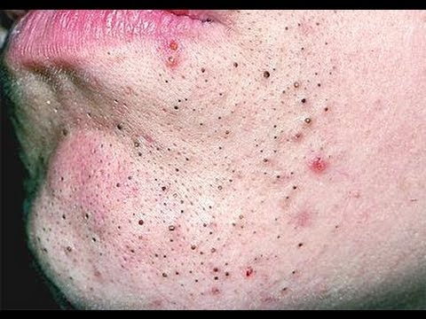5 ways to get rid of deep blackheads fast howhunter. Black Bedroom Furniture Sets. Home Design Ideas