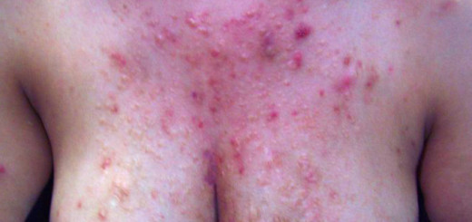 get rid of chest acne