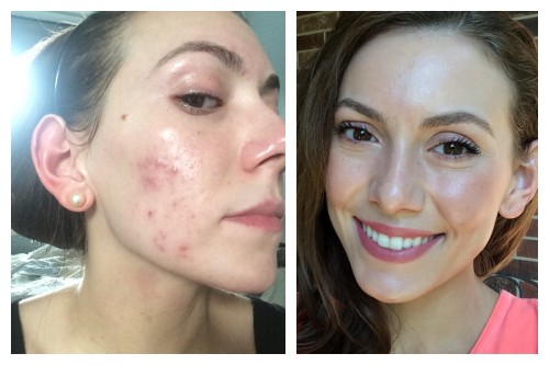 hormonal acne pictures