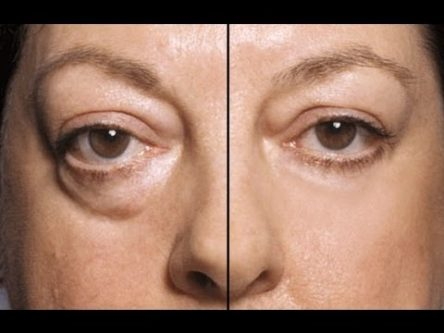 Naturally Getting Rid Of Eye Bags
