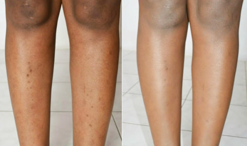 8 Ways To Get Rid Of Dark Spots On Legs Fast Howhunter