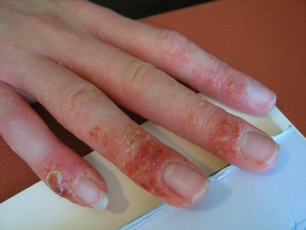 where does eczema start on the body