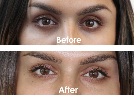 Natural Ways To Lighten Dark Circles Under Eyes