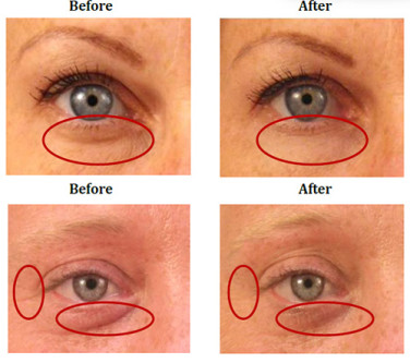 How To Remove Bags Under Eyes Naturally