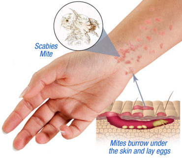 How To Kill Scabies Naturally At Home