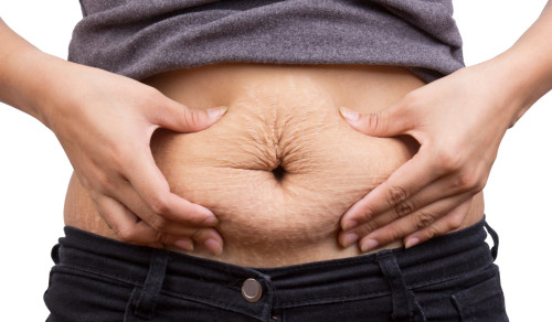 get rid of stretch marks after pregnancy