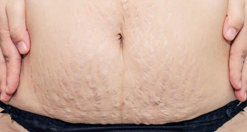 stretch marks after pregnancy-4