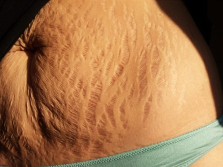 stretch marks after pregnancy-5