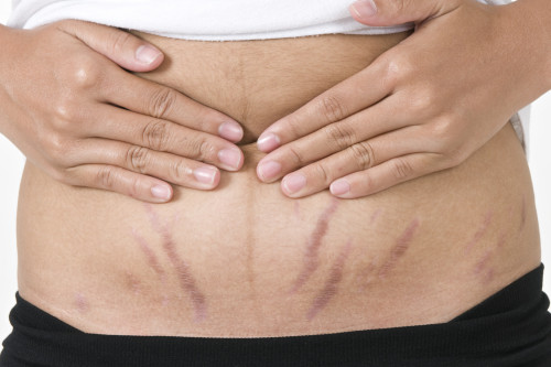 get rid of stretch marks on stomach