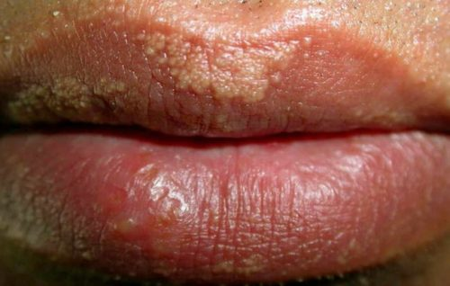 How to Recognize the Signs of Herpes One on the Head of a ...