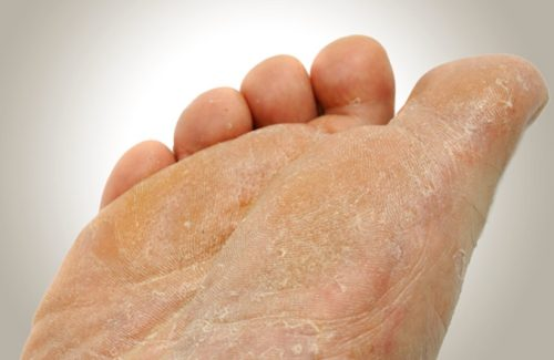 10 Ways To Get Rid Of Foot Fungus Fast And Naturally | HowHunter