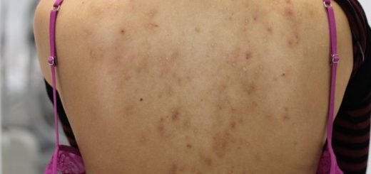 acne scars on back